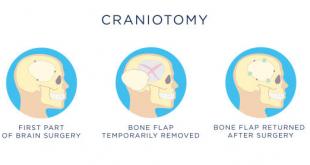 Craniotomy